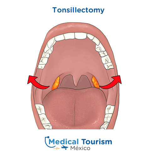 Illustrative image of Tonsillectomy