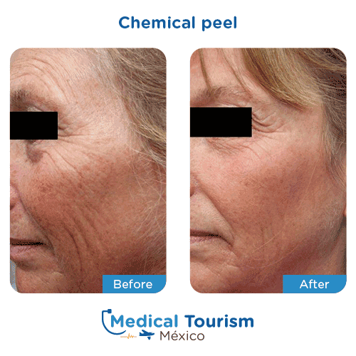 Patient before and after glycolic acid peel