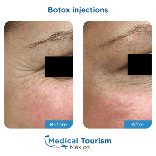Patient before and after botox injections