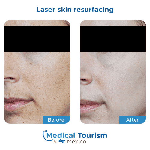 Patient before and after laser skin resurfacing