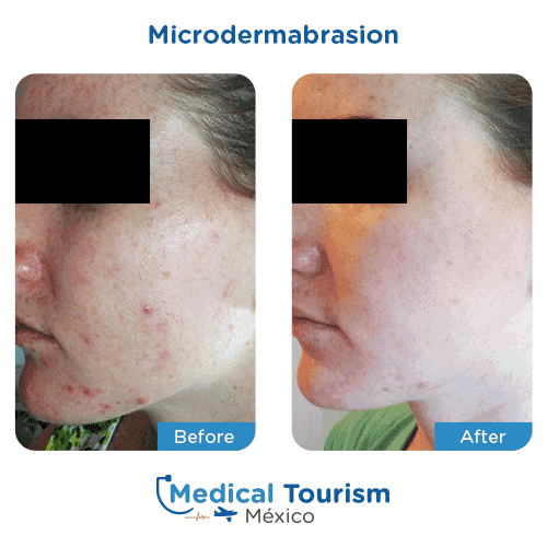 Patient before and after microdermabrasion