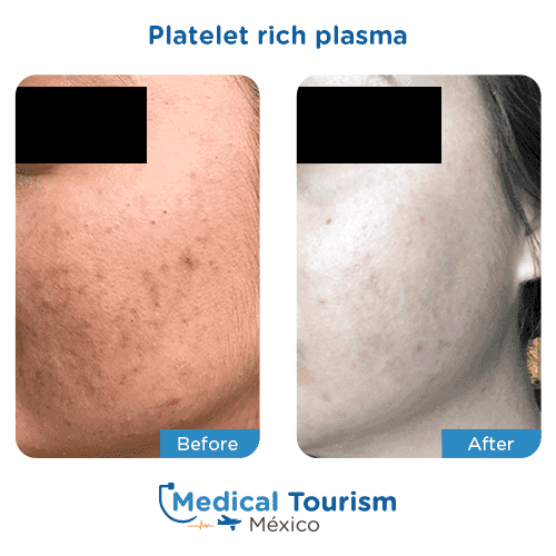 Patient before and after platelet rich plasma