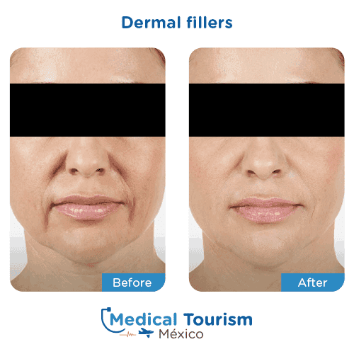 Patient before and after dermal fillers