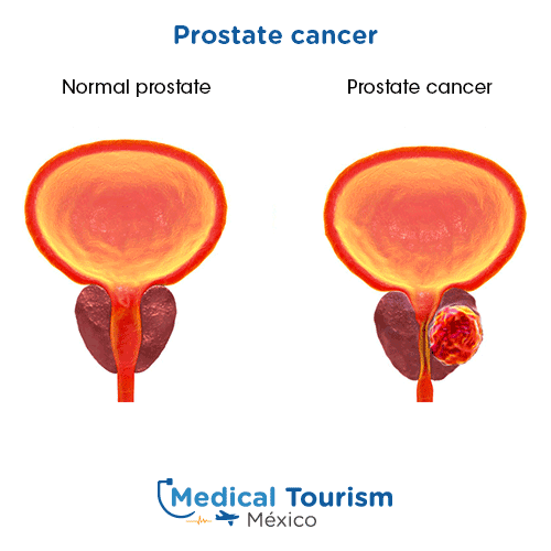Illustrative image of Prostate cancer