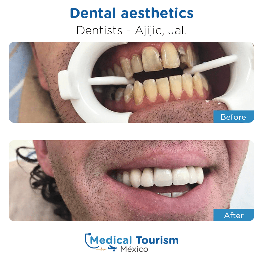 dental before and after of patients                  in Ajijic