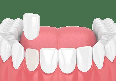 Illustrative image for dental veneers