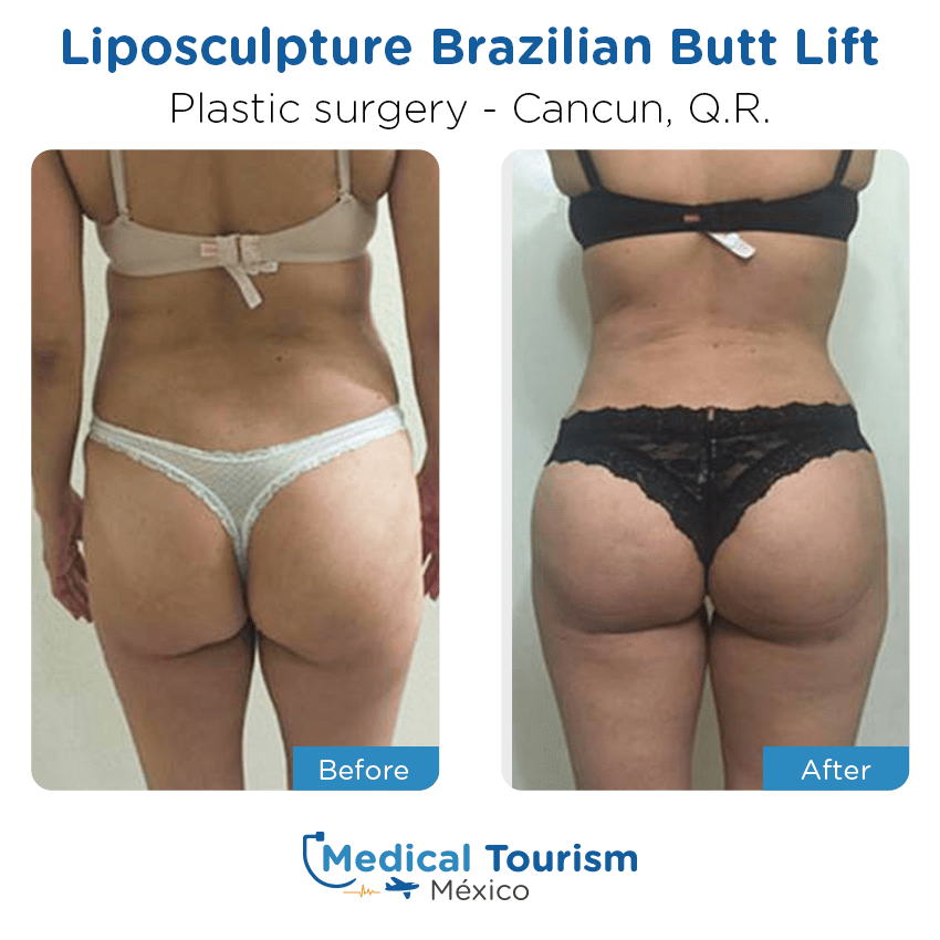 Plastic Surgery before and after of patients in                 Cancún