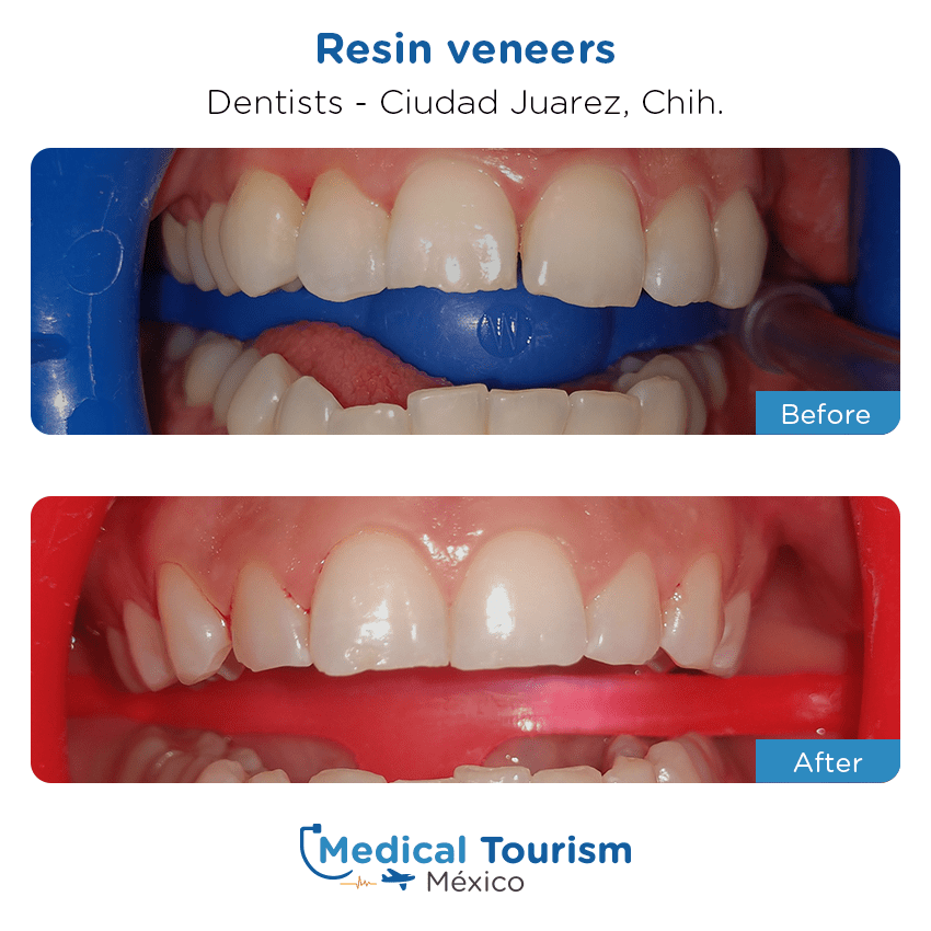 dental before and after of patients                  in Ciudad Juárez