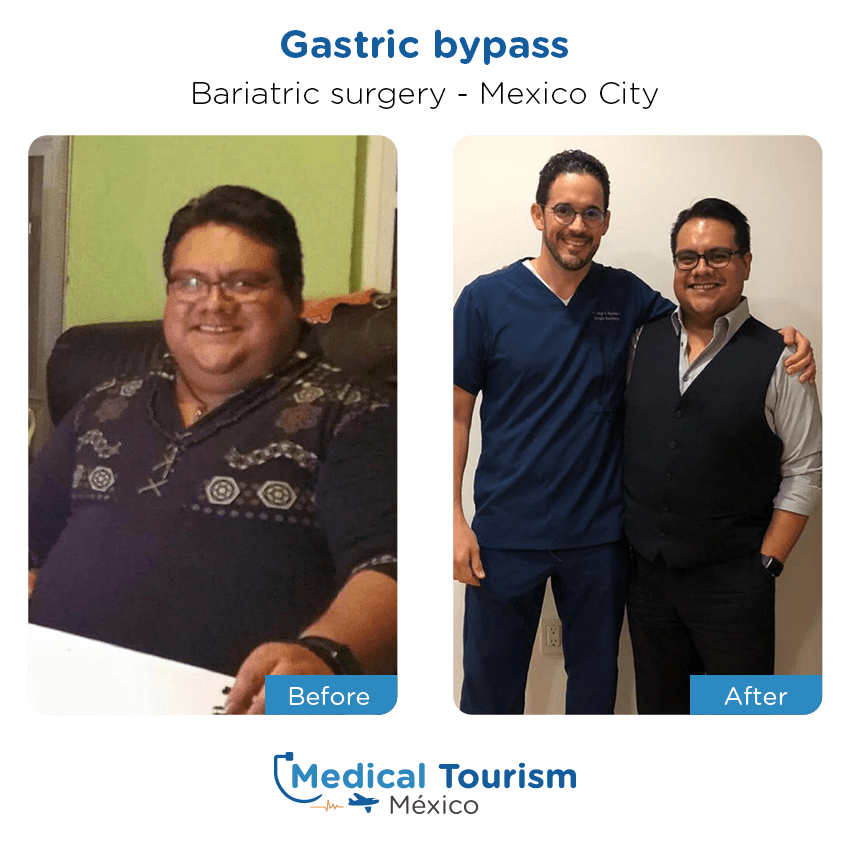 Bariatric surgery before and after of patients in