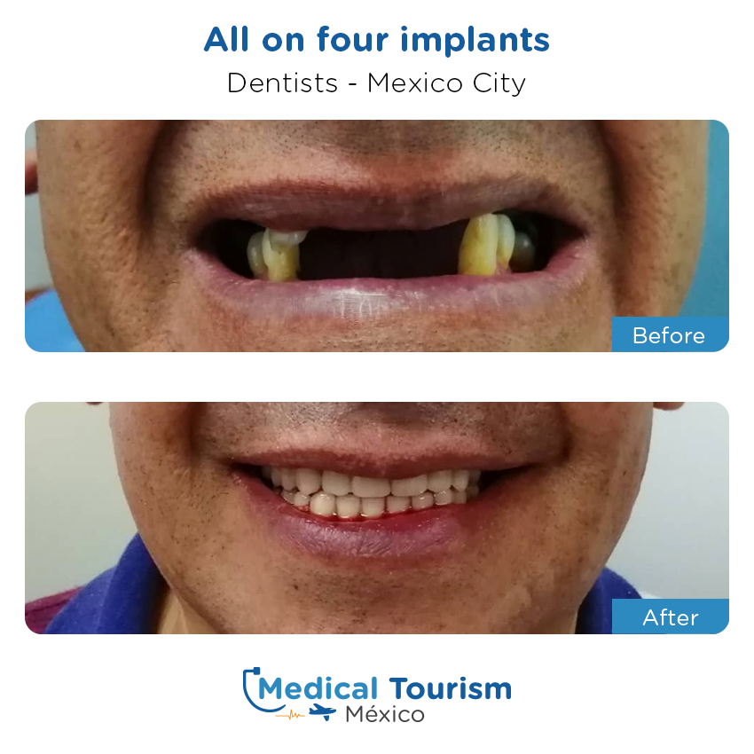 dental before and after of patients                  in Mexico City