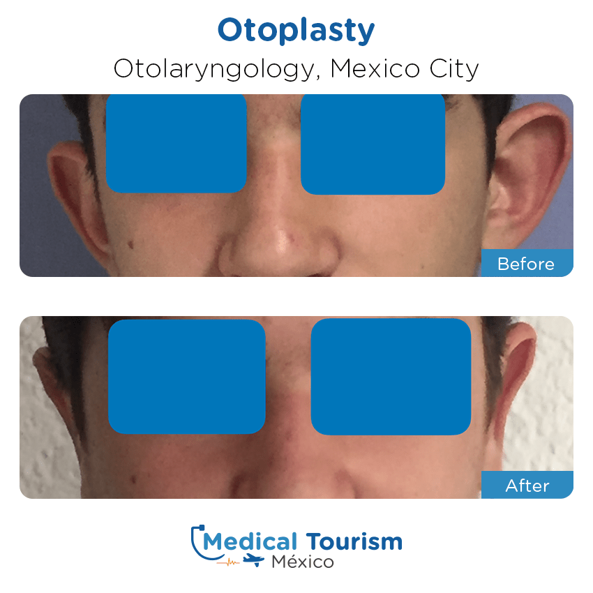 otolaryngology - ENT before and after of patients                  in Mexico City