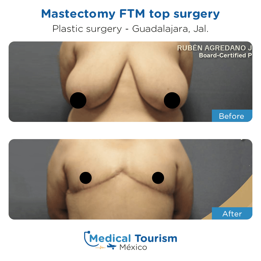 Plastic Surgery before and after of patients in