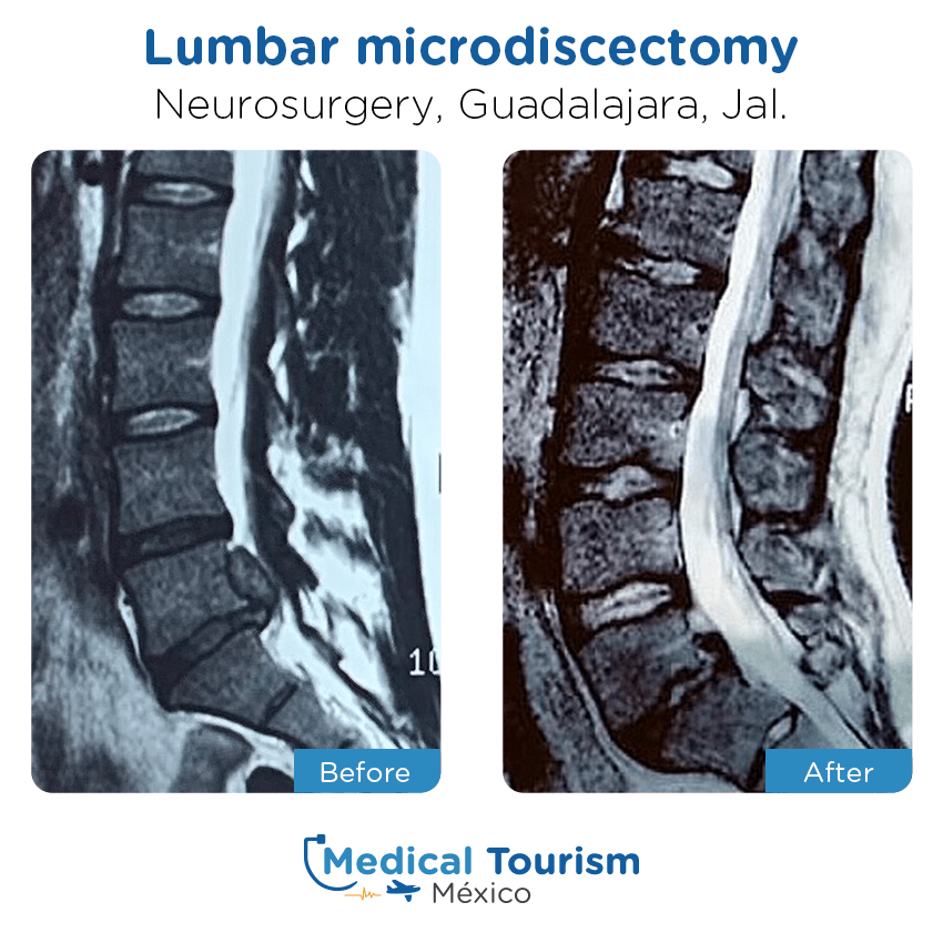neurosurgery before and after of patients                  in Guadalajara