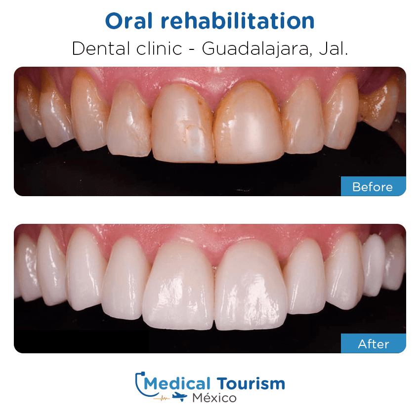 dental before and after of patients                  in Guadalajara
