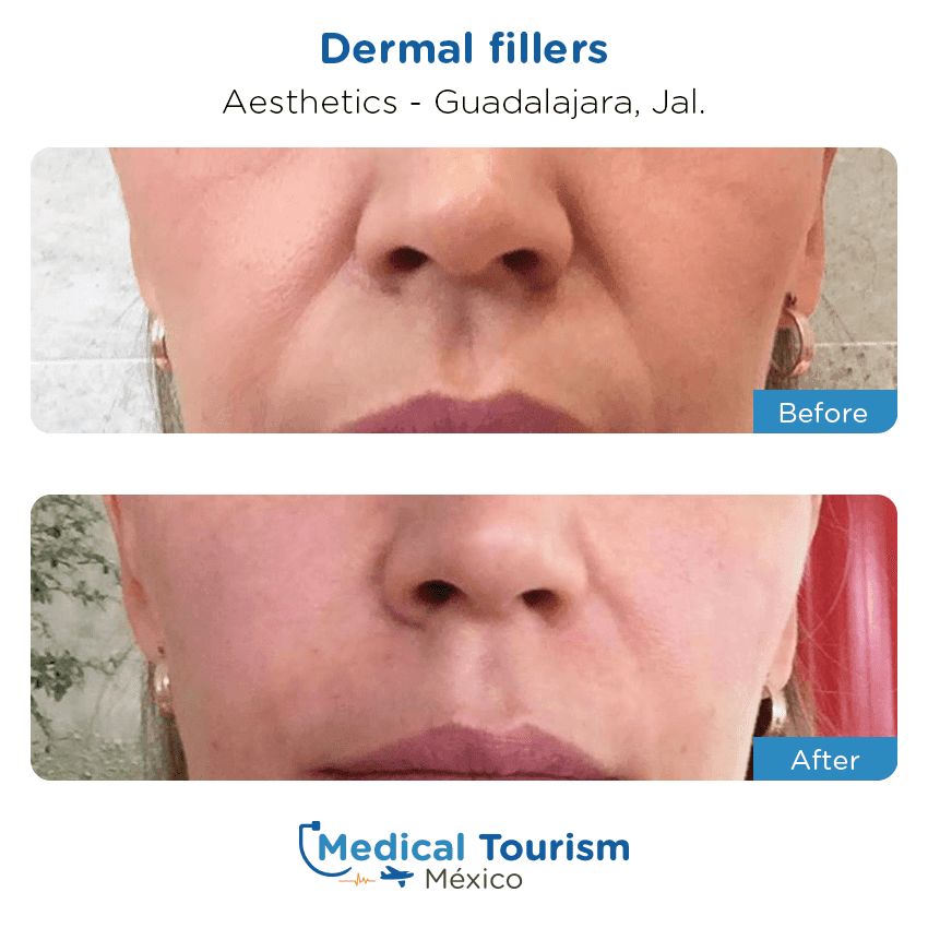 Medical spa before and after of patients in                 Guadalajara
