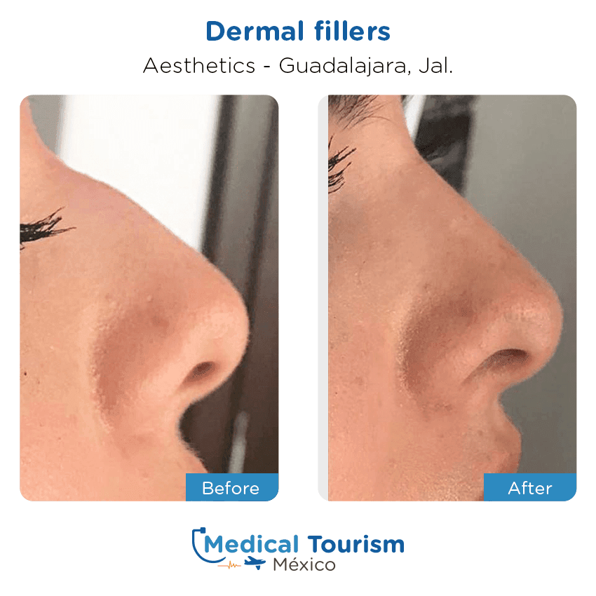Aesthetic before and after of patients in                 Guadalajara