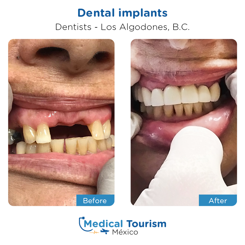 dental before and after of patients                  in Los Algodones