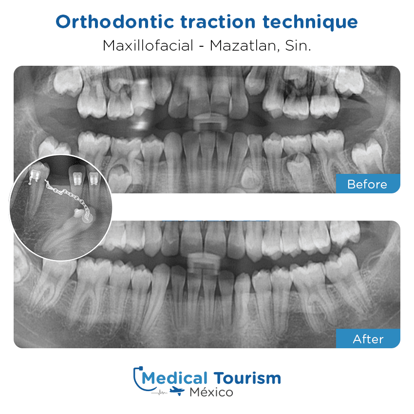 Maxillofacial before and after of patients in                 Mazatlán
