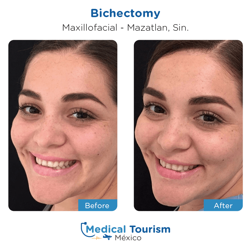 Eye vision before and after of patients in Mazatlán