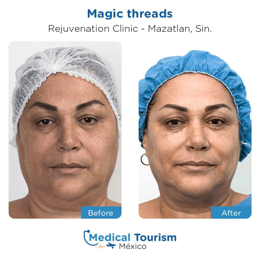 Medical spa before and after of patients in