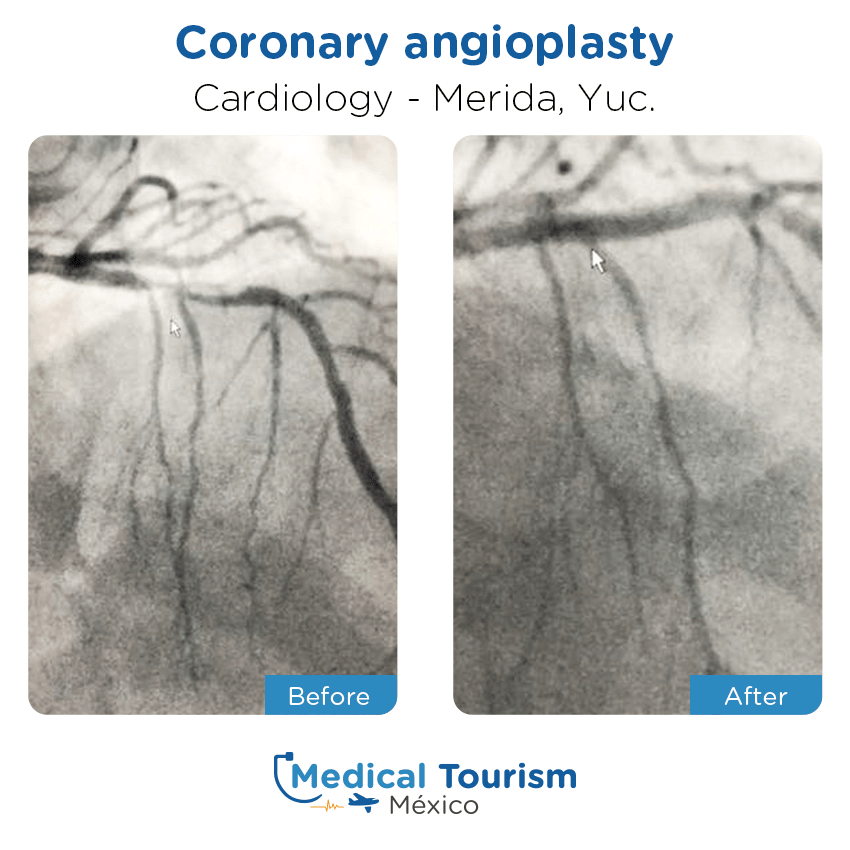 Cardiology before and after of patients                  in Mérida