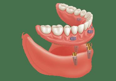 Illustrative image for snap on dentures procedure