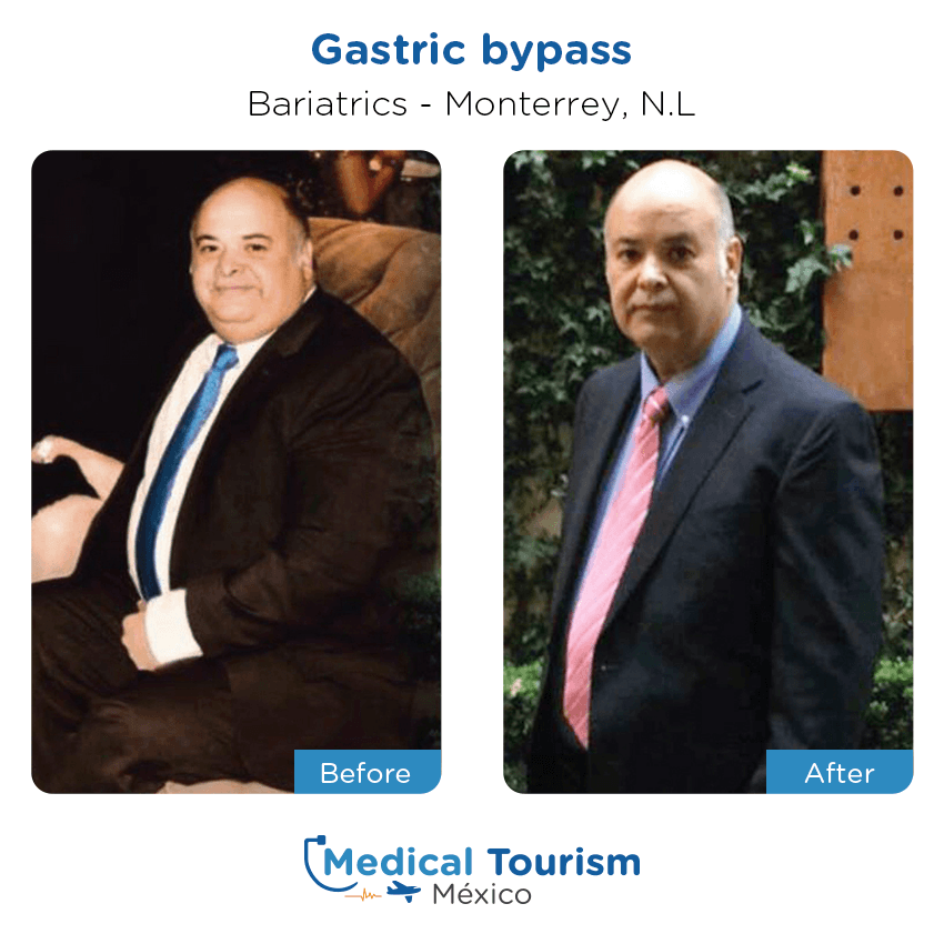Weight-loss before and after of patients in Monterrey