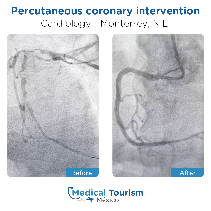 cardiology before and after of patients                  in Monterrey