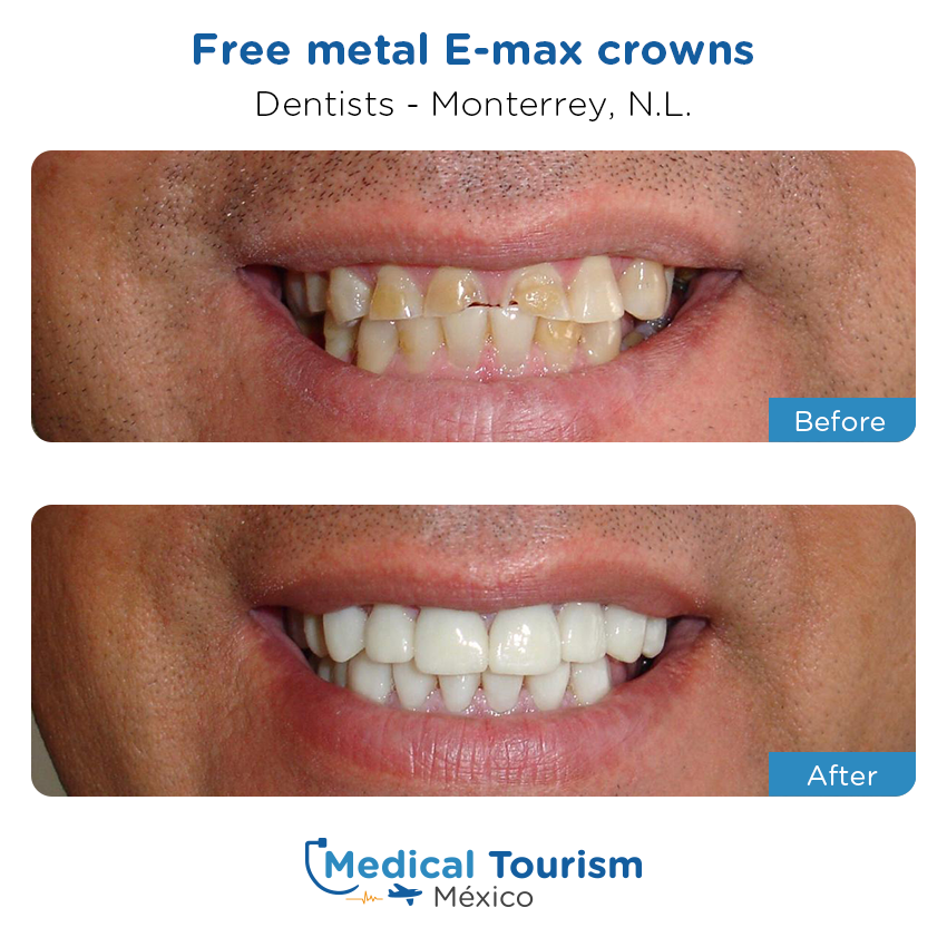 dental before and after of patients                  in Monterrey