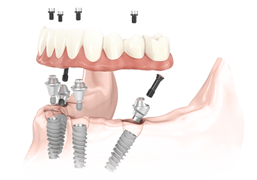 Illustrative image for all on four implants procedure