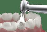 Endodontics procedure
