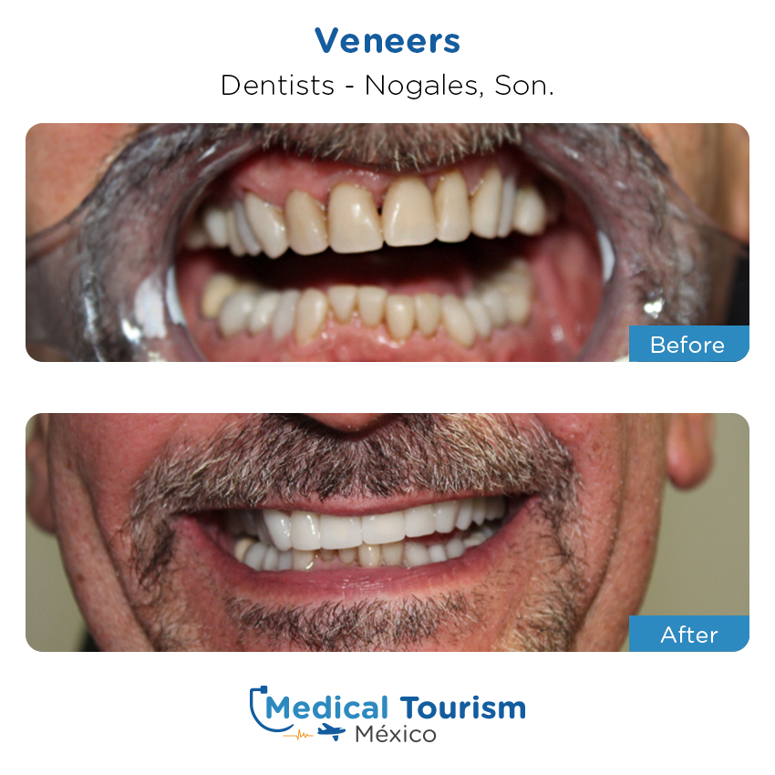 dental before and after of patients                  in Nogales