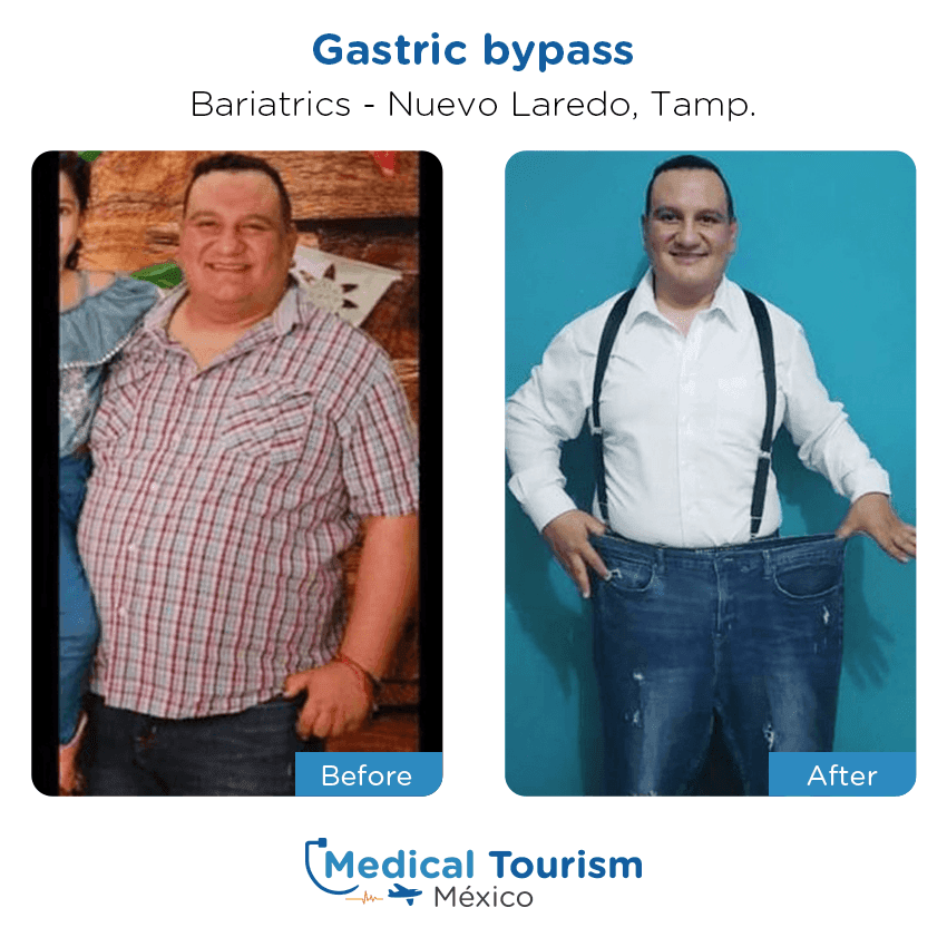 Bariatric before and after of patients in