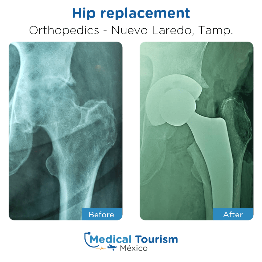 Orthopedic before and after of patients in