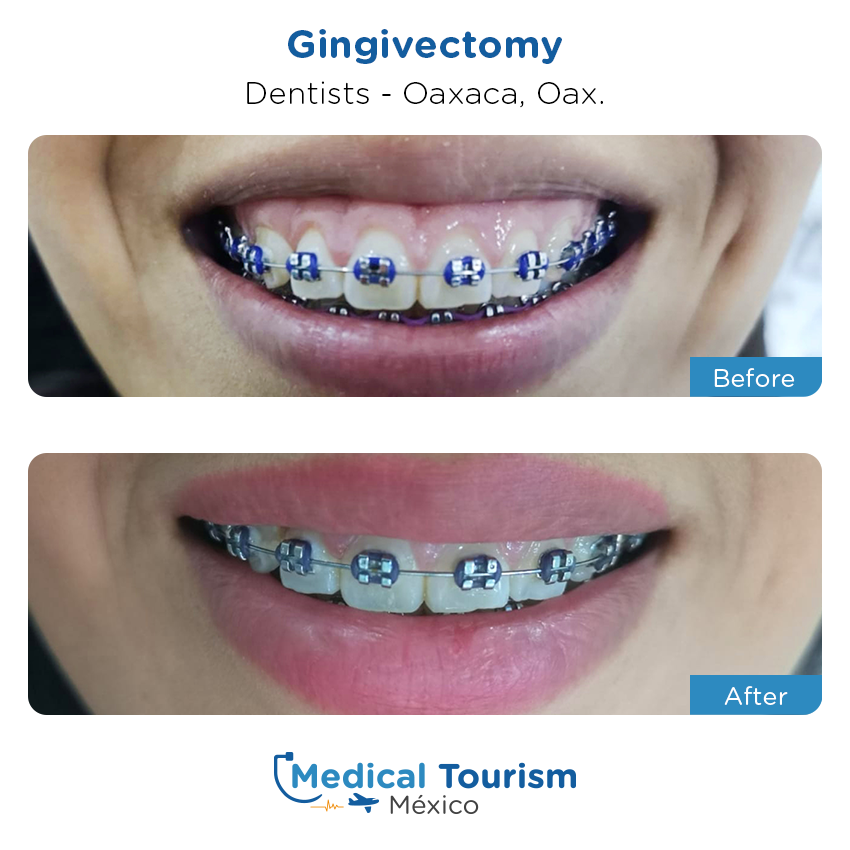 dental before and after of patients                  in Oaxaca