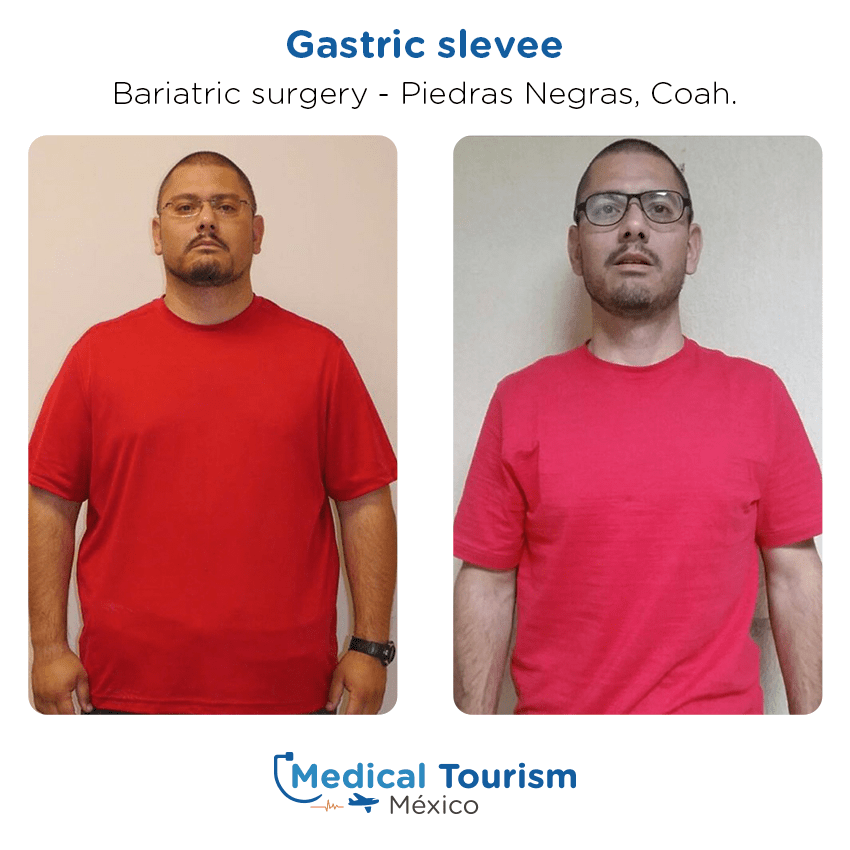 Bariatric surgery before and after of patients in                 Piedras Negras