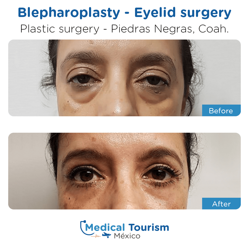 Plastic Surgery before and after of patients in                 Piedras Negras