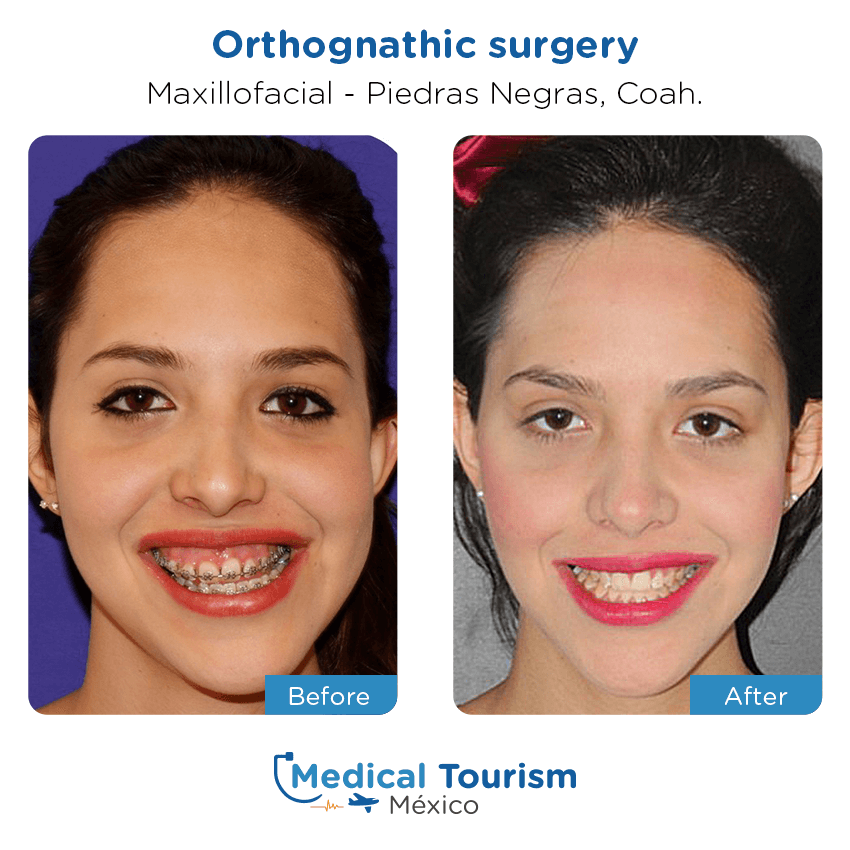 Maxillofacial before and after of patients in