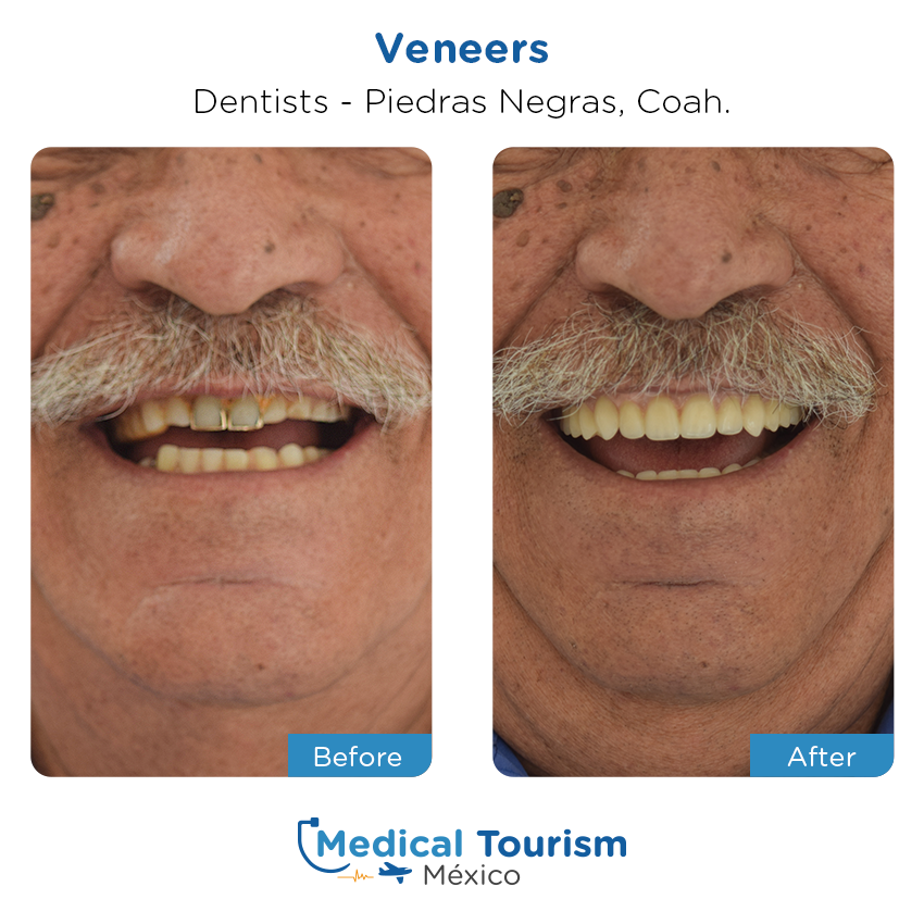 dental before and after of patients                  in Piedras Negras