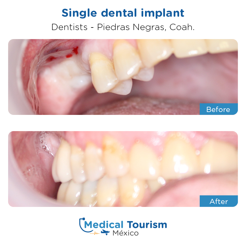 Patient before and after medical tourism