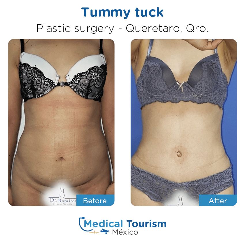 plastic surgery before and after of patients                  in Querétaro