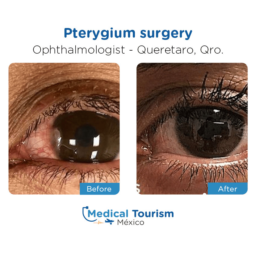 ophthalmology before and after of patients                  in Querétaro