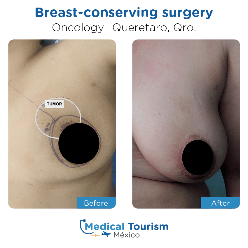 oncology before and after of patients                  in Querétaro
