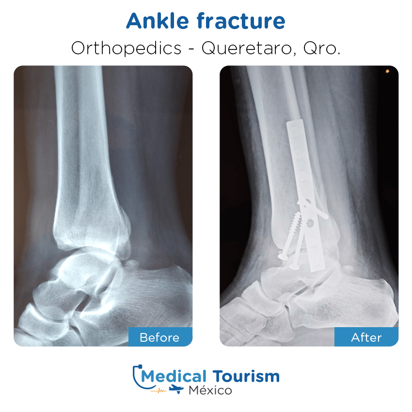 orthopedic before and after of patients                  in Querétaro