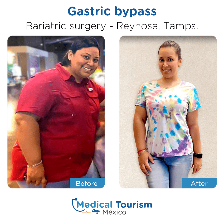 bariatric surgery before and after of patients                  in Reynosa