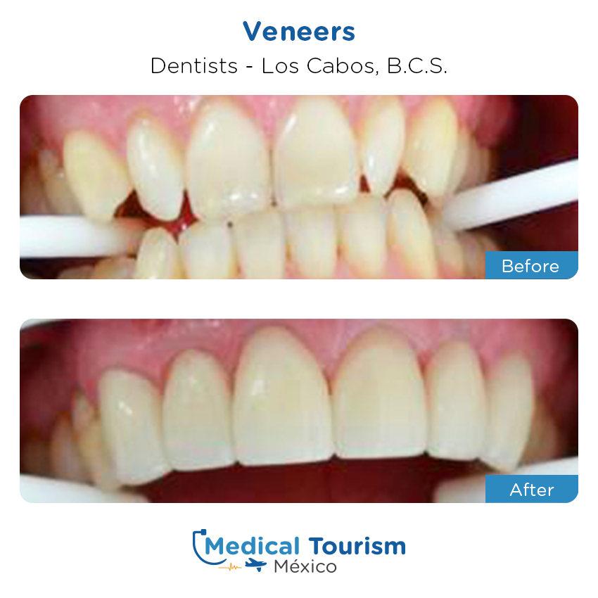 dental before and after of patients                  in Los Cabos