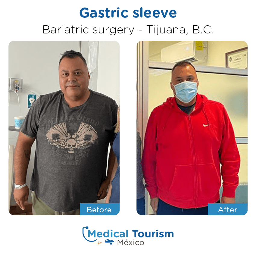 bariatric surgery before and after of patients                  in Tijuana