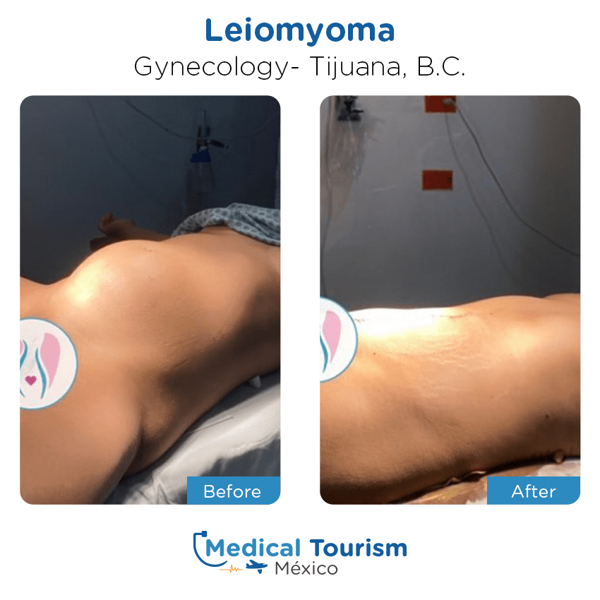 gynecology before and after of patients                  in Tijuana