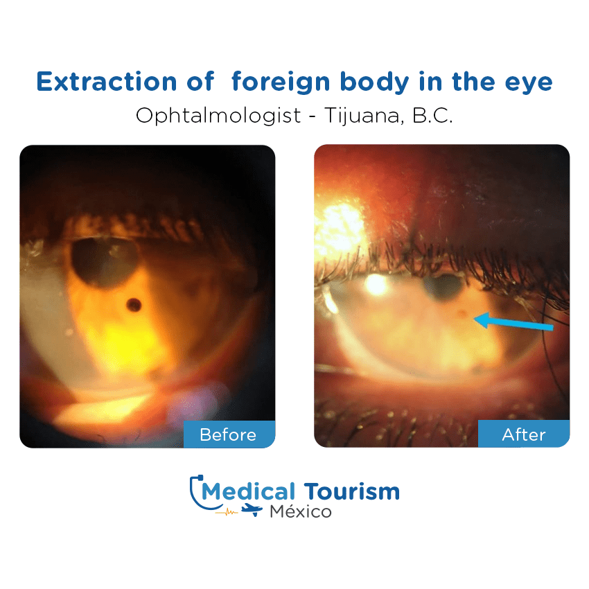 Ophthalmologic before and after of patients in