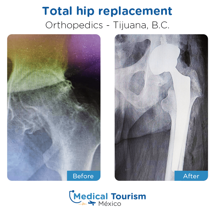 Orthopedic before and after of patients in                 Tijuana